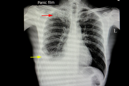 xray film of a patient with active pulmonary tuberculosis in the right upper lung (red arrow) with moderate amount of pulmonary effusion in right pleural cavity (yellow arrow)
