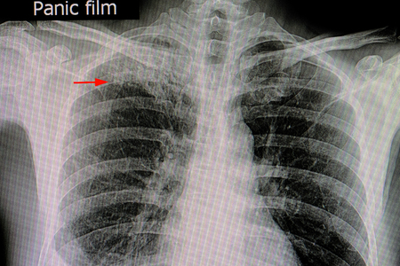 xray film of a patient with active pulmonary tuberculosis in the right upper lung (red arrow) Archivio Fotografico - 100681977