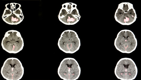 CT brain scan of a stroke patient with massive hemorrhage in the pons and cerebellum areas