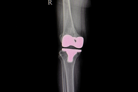 film xray of a knee of patient with total knee prosthesis replacement