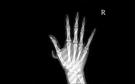 Xray image of a patient with polydactyly who has extra nonfuntional digit with bones and joint
