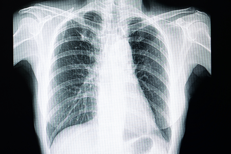 xray film of a patient with pulmonary tuberculosis with fibrosis in the right upper lung