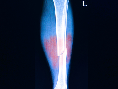 Xray film of a patient with a history of car accident showing fractures of both bones of his left legs
