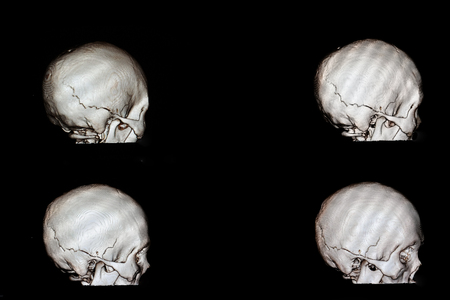 3 d rendering of a skull of a patient with head injury who had fracture occipito-temporal bone of his cranium Reklamní fotografie