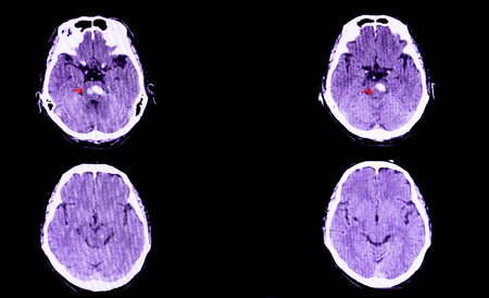 A CT scan of the brain of a patient with intracranial hemorrhage. The lesion is in the pons and extends to the cerebellum. Stock Photo