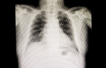A chest xray film of a patient with cardiomegaly and early lung congestion