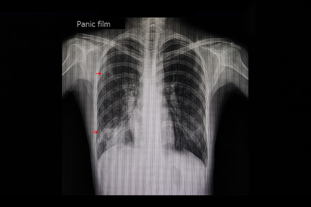 Xray film of a patient with active pulmonary tuberculosis in the right lung (red arrows).
