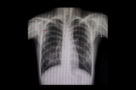 Xray film of a patient with active pulmonary tuberculosis in the right upper lung (red arrow).