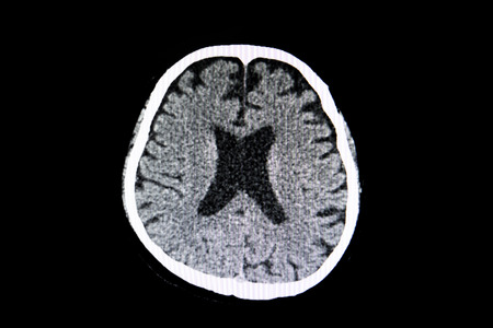 A CT scan of the brain of a patient with cerebral atrophy showing large ventricles and generalzed shrinkage of the cerebral tissue. Stock Photo - 110990030