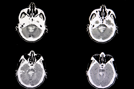 A CT scan of the brain of a patient with massive intracranial hemorrhage from hemorrhagic stroke.  The blood is seen in the pons.