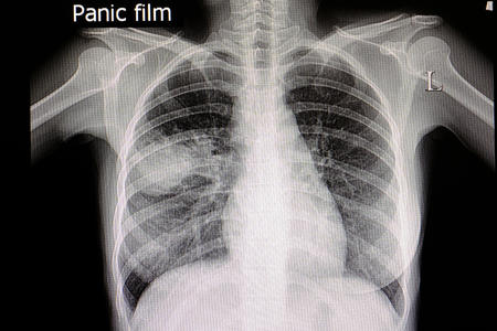 A chest xray film of a patient with right middle lung pneumonia. Stock Photo