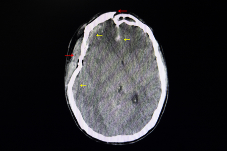 CT brain of a patient with head injury showing depression fracture of right temporal parietal Stock Photo