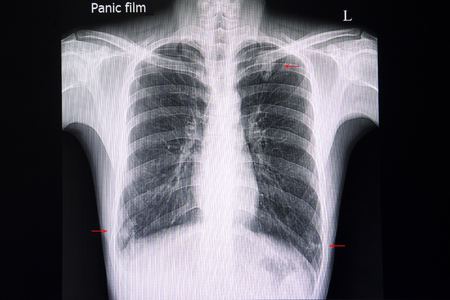 A chest xray film of a patient with multiple nodular infiltrations in the left upper and both right and left lower lungs.