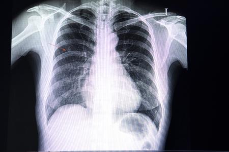 Film rentgenowski klatki piersiowej pacjenta z małym guzkiem w prawym górnym płucu.