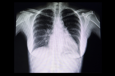 A chest xray film of a patient with cardiomegaly or enlarged heart.