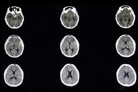 A CT brain scan of a patient with subarachnoid hemorrhage in left basal cistern from ruptured cerebral cavernous aneurysm. Stock Photo