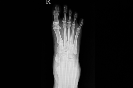 Xray film of a foot of a patient showing an avulsion fracture at the base of fifth proximal phalanx.