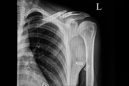 Röntgenfilm eines Patienten, der einen Autounfall erleidet, der eine geschlossene Fraktur des linken Schlüsselbeins zeigt. Standard-Bild