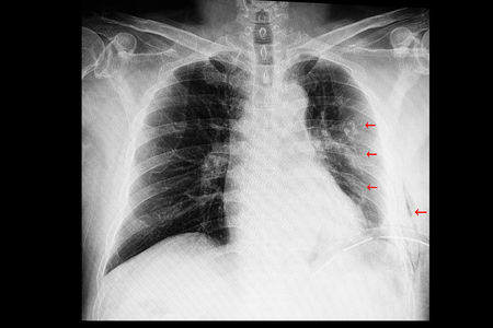 A chest xray film of a patient with old multiple left rib fractures with left side pleural effusion and an intrathoracic drainage tube (ICD).