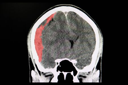A CT scan of the brain of a patient with trafic accident showing acute subdural hematoma.