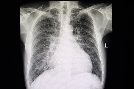 A chest xray film of a patient with congestive heart failure showing cardiomegaly and lung congestion with cephalization of pulmonary vasculatures.