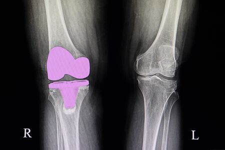 the xray film of a patient right knee after total knee arthroplasty operation.