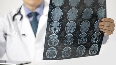 A doctor sitting on a desk looking at MRI scan of the brain of a patient. Stock Photo