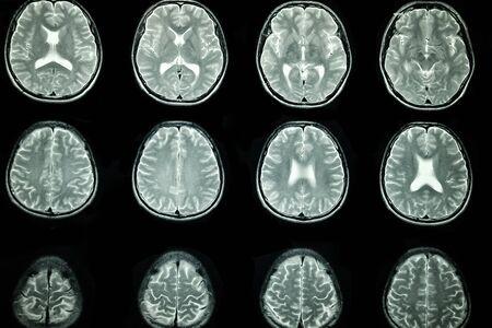 Imagen de resonancia magnética del cerebro de un paciente