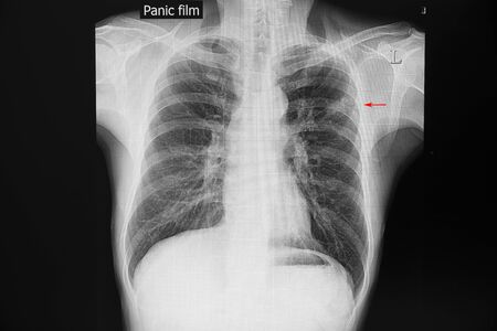 A chest x ray film of a patient with left upper  lung infiltration. Tuberculosis is likely. 写真素材