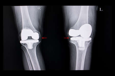 Xray film of a patient with both knees arthroplasty operation. Фото со стока