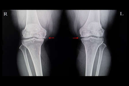 Xray film of a patient with both knees degenerative  osteoarhthritis with spurs and joint space narrowing.