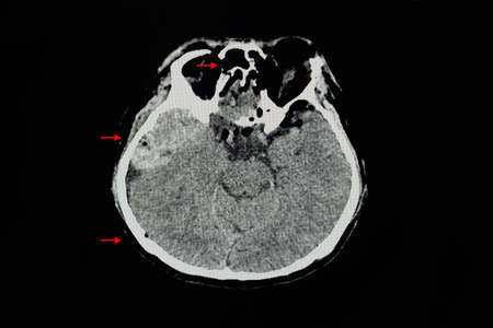 A CT brain scan of a patient with epidural hematoma at right temporal convexity with mass effect. Tension pneumocephalus. Multiple facial, sinuses, and base of skull fractures. Stock Photo