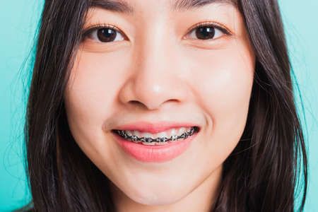 Closeup teen Asian beautiful young woman smile have dental braces on teeth laughing, studio shot isolated on a blue background, medicine and dentistry female mouth concept