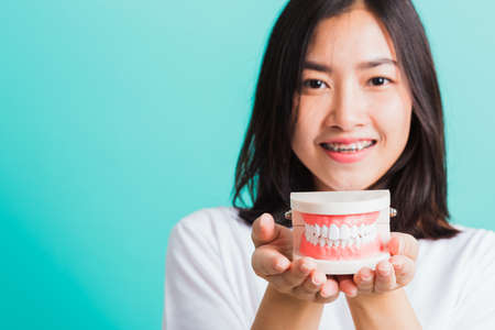 Portrait of Asian teen beautiful young woman smile have dental braces on teeth laughing she holding medical equipment dental model teeth, isolated on a blue background, Medicine and dentistry concept