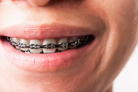 Close up detail macro of young Asian woman smile show mouth with white teeth with black brackets braces, studio shot isolated on white background, Healthcare dental braces concept