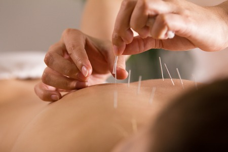 The doctor sticks needles into the womans body on the acupuncture - close up Stock Photo
