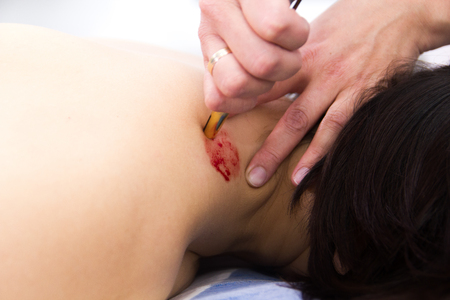 Hijama - the treatment of bloodletting. Making holes