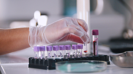 A female is working with flask in medical laboratory Banque d'images - 114488259