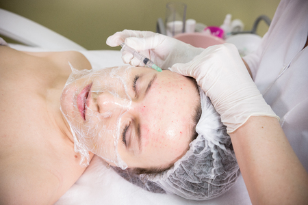 Cosmetic procedure of mesotherapy. Injection marks on a forehead Stock Photo
