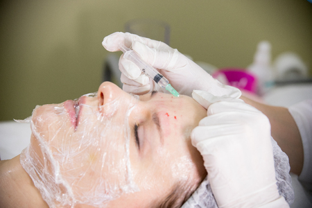 Cosmetic procedure of mesotherapy. Doing injections in a forehead