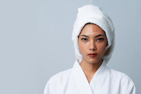 Vergleich Portrait der schönen asiatischen Frau. Dunkle Flecken und neue Haut, Vorher - Nachher Hautpflege und Reinigungskonzept, Schönheitsbehandlungsprozess des Alterns zur Verjüngung.