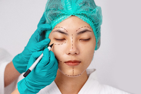 Beautiful portrait Asian woman tan skin in wearing medical hat while close eyes with Doctor's hand in glove making dotted lines marks on patients face before plastic surgery operation.