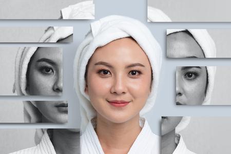 Comparaison Portrait de belle femme asiatique. Taches brunes et peau neuve, Avant - Après soins de la peau et concept de nettoyage, Processus de traitement de beauté du vieillissement pour le rajeunissement.