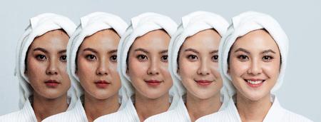 Vergelijking Portret van mooie Aziatische vrouw. Donkere vlekken en nieuwe huid, voor - na huidverzorging en schoon concept, schoonheidsbehandelingsproces van veroudering voor verjonging.