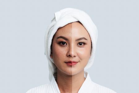 Comparación retrato de mujer asiática hermosa. Manchas oscuras y piel nueva, Antes - Después del cuidado de la piel y concepto de limpieza, Proceso de tratamiento de belleza del envejecimiento para el rejuvenecimiento.
