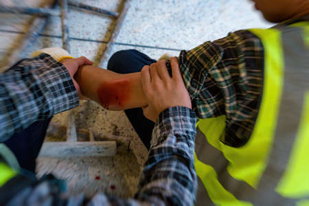 Injury bleeding from work accident in pile of scaffolding steel falling down to impinge the arm of young builder. Add zoom fillter for emotional movement. 免版税图像