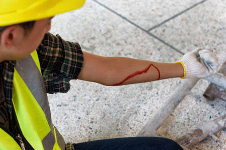 Injury bleeding from work accident in pile of scaffolding steel falling down to impinge the arm of young builder.