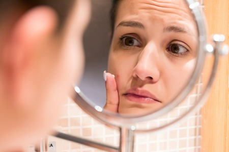 Young girl in front of a bathroom mirror putting cream on a red pimple. Beauty skincare and wellness morning concept. Stock Photo - 123103039