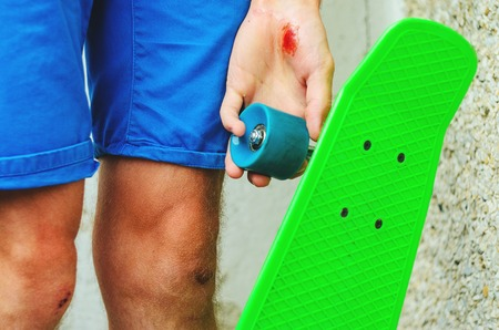 hemorragias: Closeup of a young caucasian man with a skate board in his hand. Injuries in extreme sports. Traumatic extreme sports concept