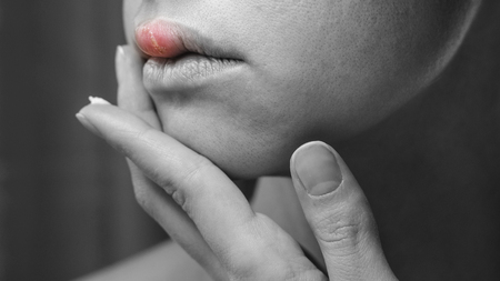 Woman Applying Ointment on Her Upper Lip with Herpes. Treatment of Herpes Symptoms. Black and White Background with Red Inflammation on Skin